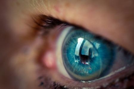 ptosis & contact lens