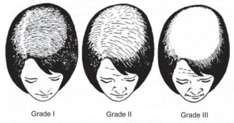 Ludwig hair loss scale
